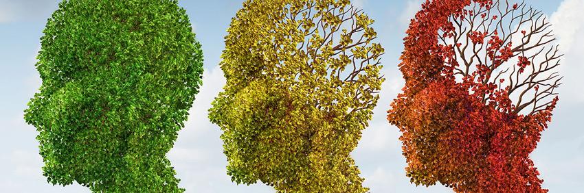 El cerebro con Alzheimer