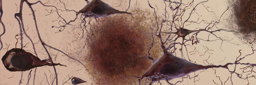 Alzheimer, placas y enredos neurofibrilares